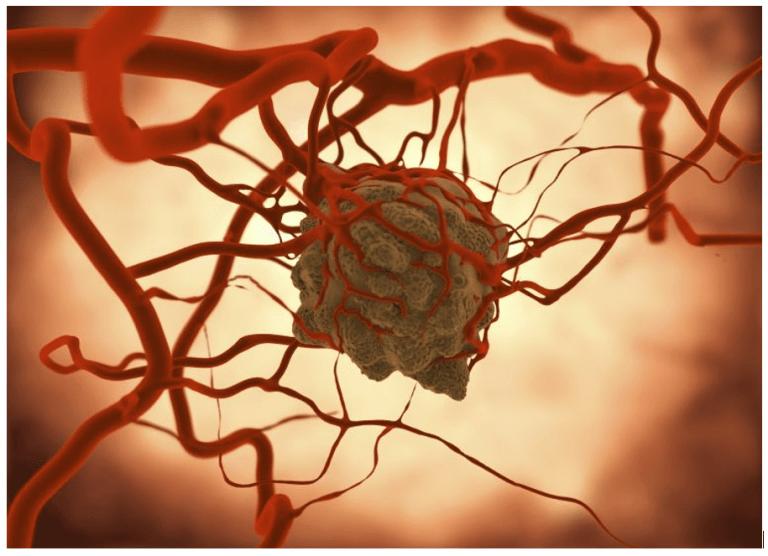 Baktériumokat találtak a daganatokban. Új rákterápia jöhet?